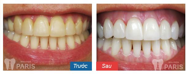 Tẩy trắng răng giá bao nhiêu tiền thì bền đẹp nhất? 3