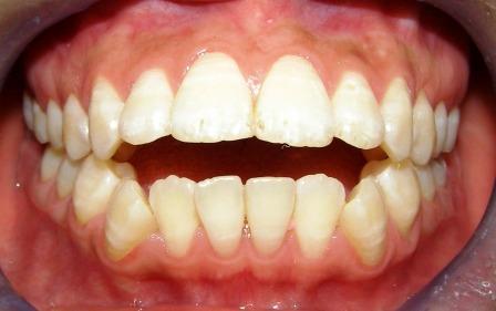 Răng lệch khớp cắn là gì và cách điều trị hiệu quả 1