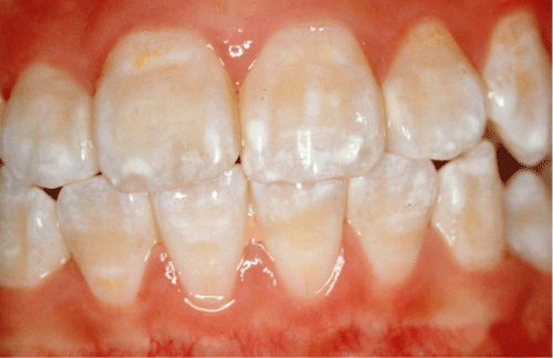 Bột tẩy trắng răng Eucryl và những điều cần biết! 2
