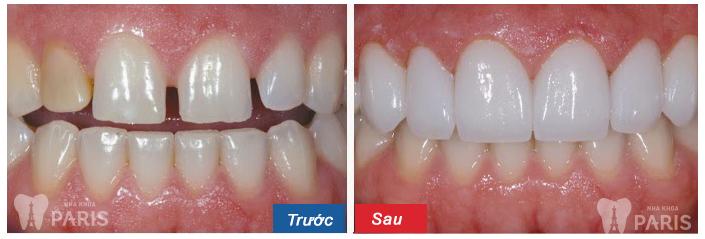Khi nào cần niềng răng để đạt hiệu quả TỐI ƯU NHẤT 2