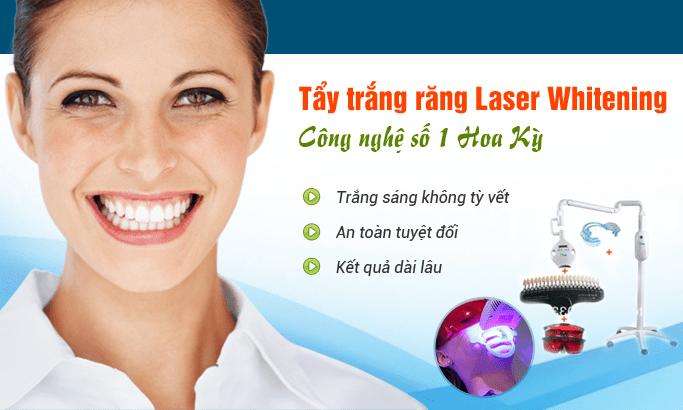 Tẩy trắng răng bằng tia laser SIÊU TỐC an toàn, hiệu quả! 2