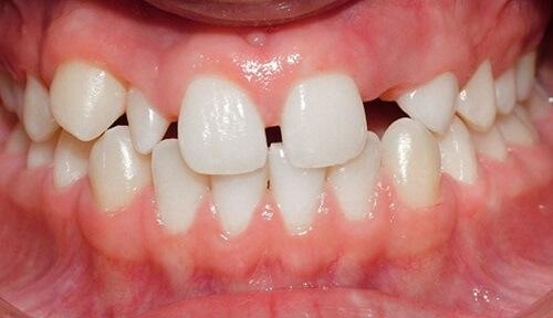 Điều trị răng thưa hiệu quả bằng kỹ thuật trám răng thưa