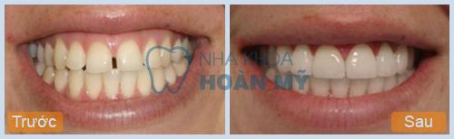 Điều trị răng thưa hiệu quả bằng kỹ thuật trám răng thưa 2