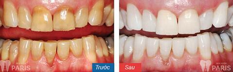 Những cách tẩy ố vàng răng phổ biến nhất hiện nay 2