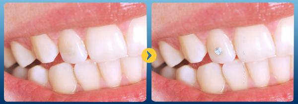 Bạn có biết: Giá của đá đính răng chất lượng tốt nhất hiện tại 5