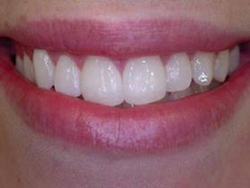 Bạn có biết: Giá của đá đính răng chất lượng tốt nhất hiện tại 6