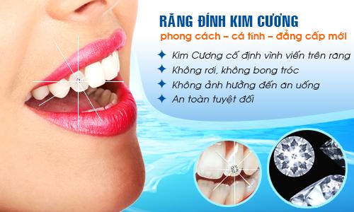 Bạn có biết: Giá của đá đính răng chất lượng tốt nhất hiện tại 3