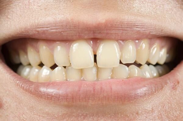 Cách làm sạch răng bằng tăm tre liệu có gây hại hay không? 2