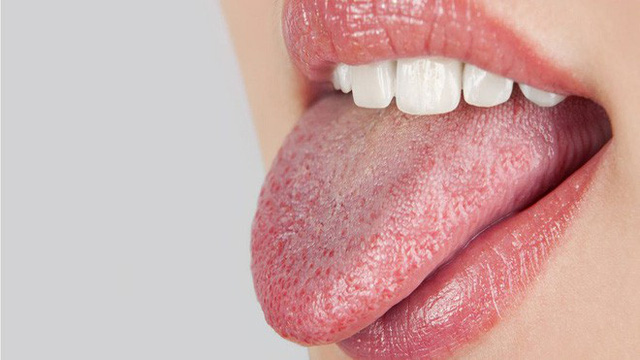 Bệnh khô miệng và những hậu quả khó lường 1