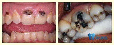 Những nguyên nhân khiến sâu răng bị đen và cách điều trị 1