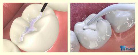 Những nguyên nhân khiến sâu răng bị đen và cách điều trị 3