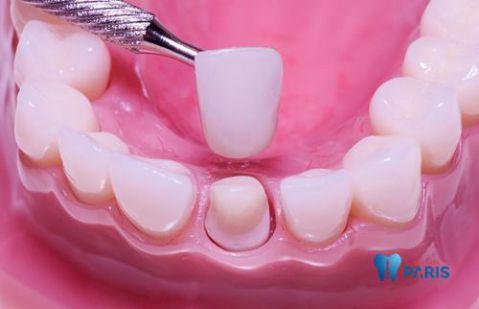 Những nguyên nhân khiến sâu răng bị đen và cách điều trị 4