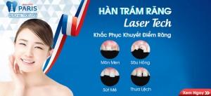 Hàn trám răng Laser Tech – Phương pháp phục hình ĐẸP và BỀN