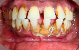 Những cách chữa chảy máu chân răng hiệu quả triệt để nhất