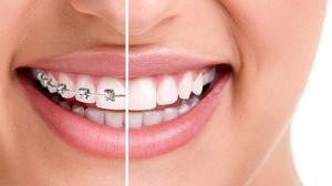 Giải đáp: Răng xấu phải làm sao để đẹp và bền khít hiệu quả