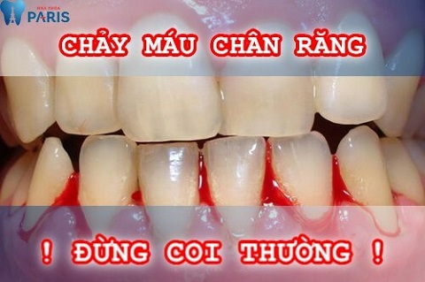 Bỗng dưng bị chảy máu chân răng: Nguyên nhân và cách điều trị 1