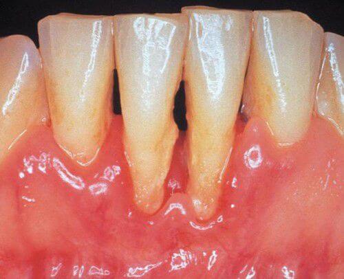 Nguyên nhân và cách điều trị bệnh viêm chân răng hiệu quả