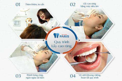 Biểu hiện của viêm nha chu và cách điều trị tốt nhất 2