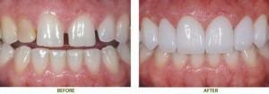 Lý do tại sao răng bị thưa và cách phục hình răng thưa hiệu quả 2