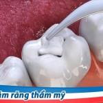 Cách hàn răng sâu nào tốt và hiệu quả nhất?