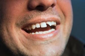 Răng mẻ. Nguyên nhân và cách phục hình ưu việt nhất