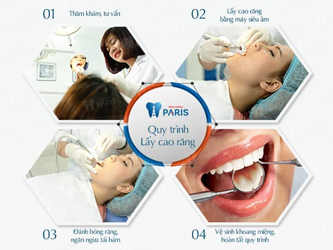 Khám phá bí mật về cách làm sạch cao răng TỐT NHẤT hiện nay 1