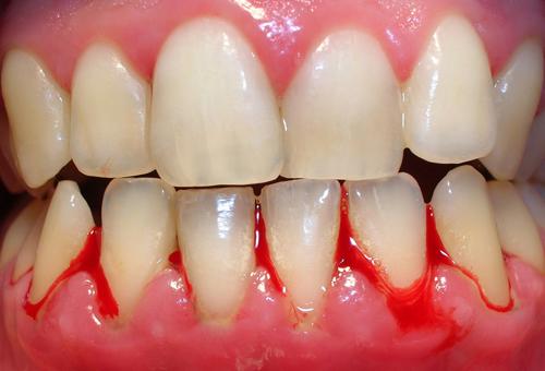 Chảy máu chân răng – Nguyên nhân và cách chữa trị tận gốc