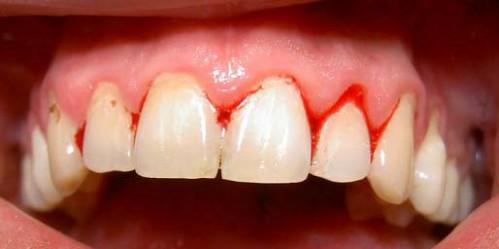 Chảy máu chân răng – nguyên nhân và cách điều trị hiệu quả