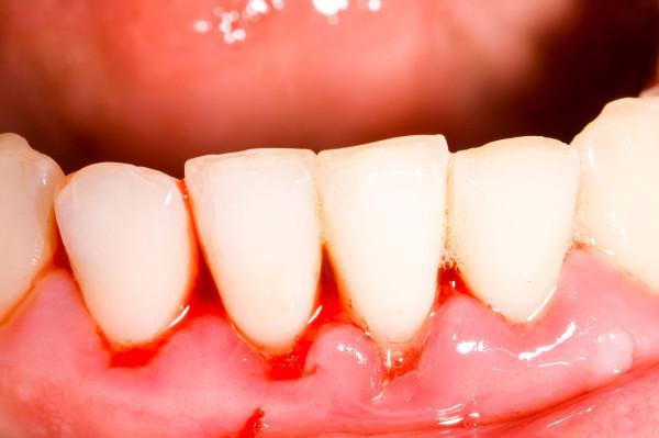 Tổng hợp cách chữa chảy máu chân răng hiệu quả nhất