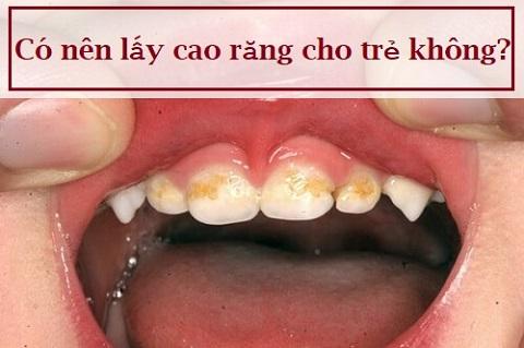 Chia sẻ: Có nên lấy cao răng cho trẻ như người lớn không? 1
