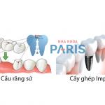 Chuyên gia giải đáp: Có nên trồng răng sứ không?