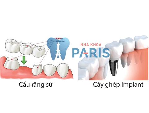 Chuyên gia giải đáp: Có nên trồng răng sứ không? 2