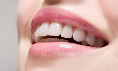 Chuyên gia giải đáp: Có nên trồng răng sứ không? 1
