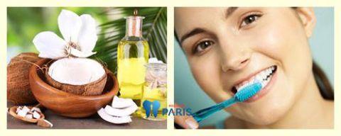 Đánh răng bằng dầu dừa làm sạch cao răng & khử mùi hôi miệng 1