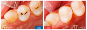 Hàn trám răng Laser Tech - Phương pháp phục hình ĐẸP và BỀN 6