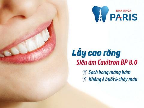 Xử lý Cao răng: Nguyên nhân chảy máu chân răng chủ chốt! 3
