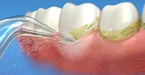 Lưu ý: Liệu có an toàn với cách làm sạch răng bằng tăm tre 3
