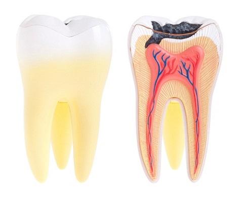 Bạn chỉ tốn 2 PHÚT để biết được khi nào nên hàn răng? 1