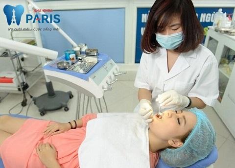 Lấy cao răng Siêu Âm - Trải nghiệm đẳng cấp 5 sao chỉ với hơn 150k 2