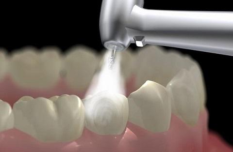 Lấy cao răng Siêu Âm - Trải nghiệm đẳng cấp 5 sao chỉ với hơn 150k 1