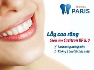 Lấy cao răng với máy siêu âm Cavitron – Tiền nào của nấy