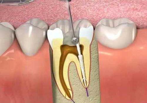 Hút tủy răng có đau không? Hàn trám răng hiệu quả ra sao?
