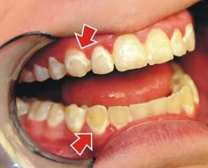 Giải đáp thắc mắc: Sử dụng miếng dán trắng răng có hại không? 2