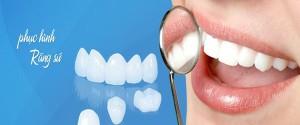 Có nên làm mặt dán veneer cho răng bị nhiễm màu kháng sinh 2