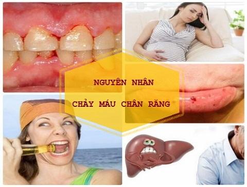 Nguyên nhân bị chảy máu chân răng và những Biến chứng TAI HẠI 1