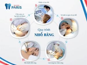 Giới thiệu công nghệ nhổ răng khôn mọc lệch hiện đại nhất Việt Nam 2