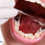 Những cách điều trị răng sâu độ 3 dứt điểm bạn nên biết