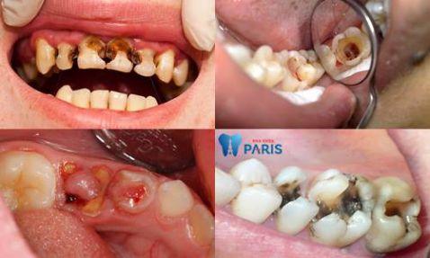 Những cách điều trị răng sâu độ 3 dứt điểm bạn nên biết 2
