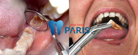 Những cách điều trị răng sâu độ 3 dứt điểm bạn nên biết 3