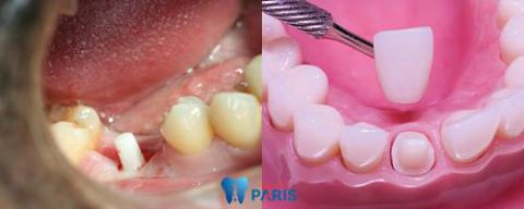 Những cách điều trị răng sâu độ 3 dứt điểm bạn nên biết 4